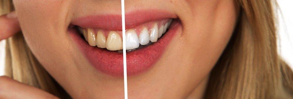 Pålitliga tandläkare på Östermalm