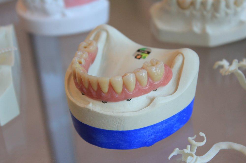 Tandläkare specialiserad på implantat i Upplands Bro